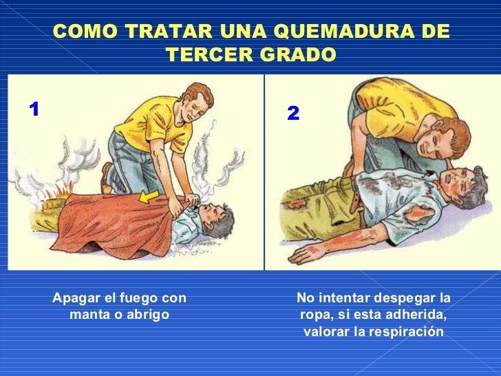 Primeros auxilios dr glenn for Quemadura cuarto grado