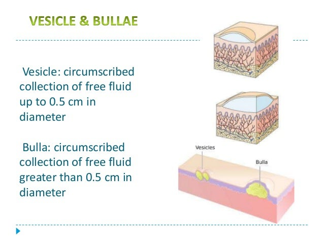 priya seminar on ulcerativevesicular and bullous lesions