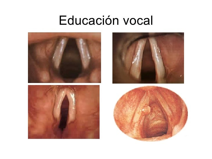 Educación vocal