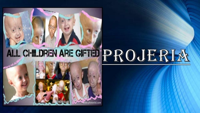 What is Progeria? Progeria is a genetically dominant disease which is caused by a single mutation in DNA resulting in prod...