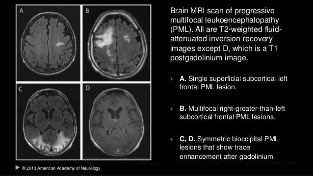 progressive-multifocal-leukoencephalopathy-gross