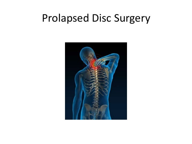 Prolapsed Disc Surgery