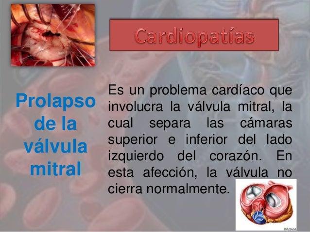 Prolapso de la válvula mitral Es un problema cardíaco que involucra la válvula mitral, la cual separa las cámaras superior...