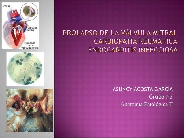 Prolapso mitral, Cardiopatia Reumatica y Endocarditis Infecciosa