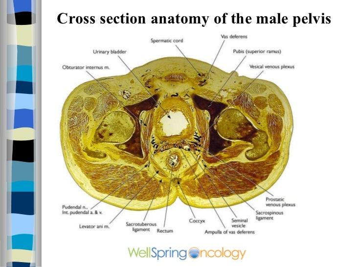 Cross Sectional Anatomy Ct.MRI Neck Anatomy Free MRI Axial Neck ...