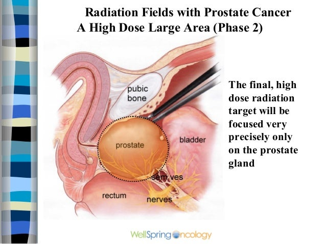 Prostate Cancer Radiation Remedy Achievement Rate