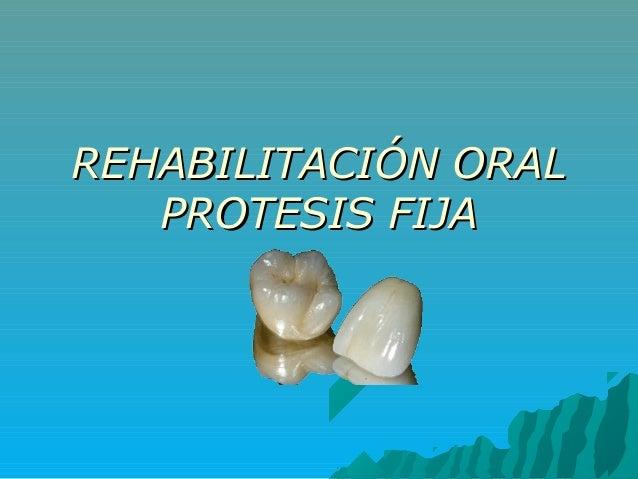 REHABILITACIÓN ORALREHABILITACIÓN ORAL PROTESIS FIJAPROTESIS FIJA