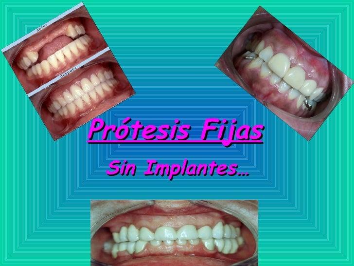 Prótesis Fijas   Sin Implantes…