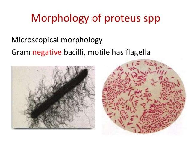 proteus-spp-v-sperme