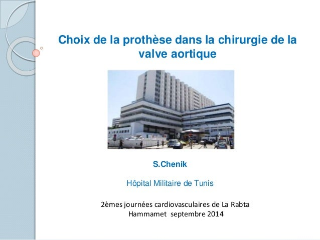 Choix de la prothèse dans la chirurgie de la valve aortique S.Chenik Hôpital Militaire de Tunis 2èmes journées cardiovascu...