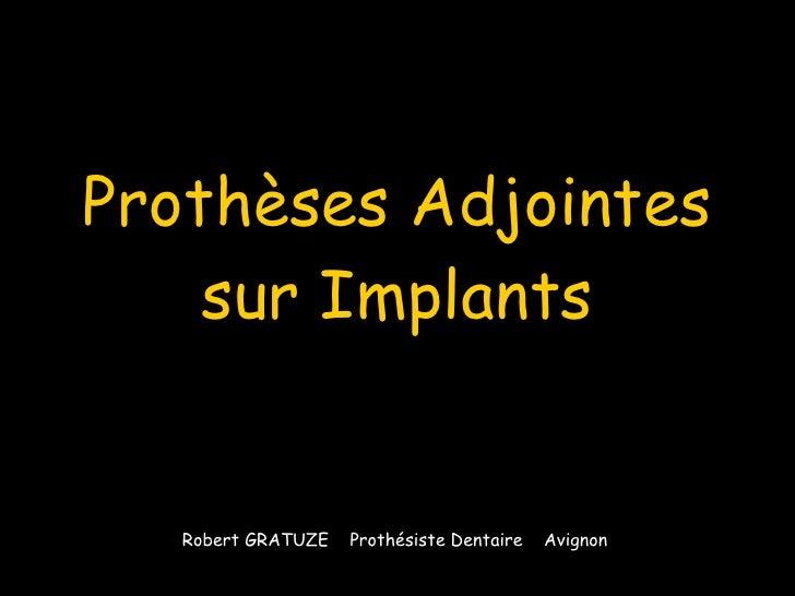 Prothèses Adjointes sur Implants Robert GRATUZE  Prothésiste Dentaire  Avignon