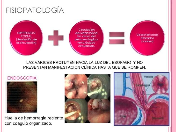 La medicina para el tratamiento de la tromboflebitis