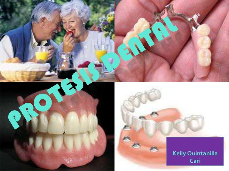 PROTESIS DENTAL<br />Kelly Quintanilla Cari<br />