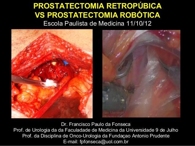 PROSTATECTOMIA RETROPÚBICA        VS PROSTATECTOMIA ROBÓTICA             Escola Paulista de Medicina 11/10/12             ...