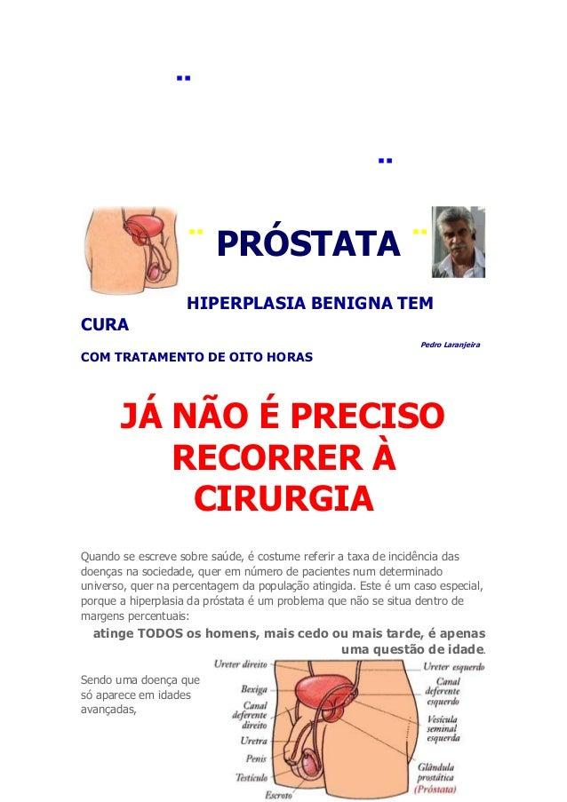 ¨ PORTUGALPIONEIRO EMMEDICINA ¨¨ PRÓSTATA ¨HIPERPLASIA BENIGNA TEMCURAPedro LaranjeiraCOM TRATAMENTO DE OITO HORASJÁ NÃO É...