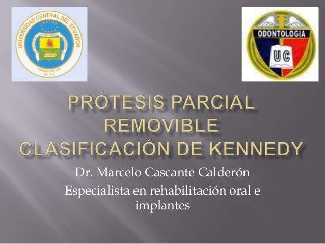 Dr. Marcelo Cascante CalderónEspecialista en rehabilitación oral eimplantes
