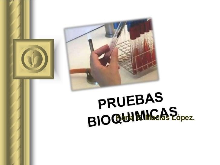 PRUEBAS BIOQUIMICAS<br />Karla S. Macías López.<br />
