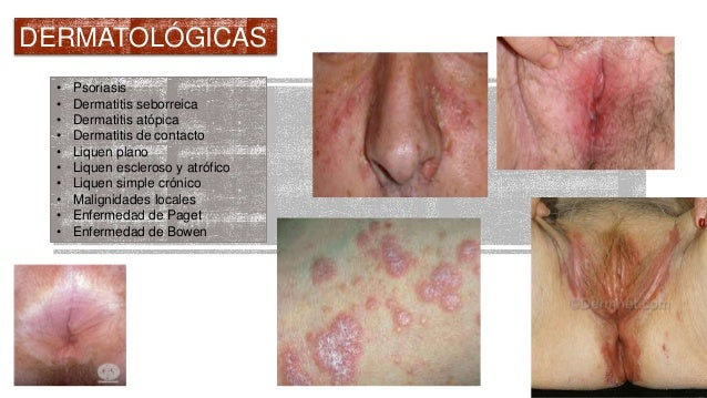 La psoriasis sobre las palmas el tratamiento la crema