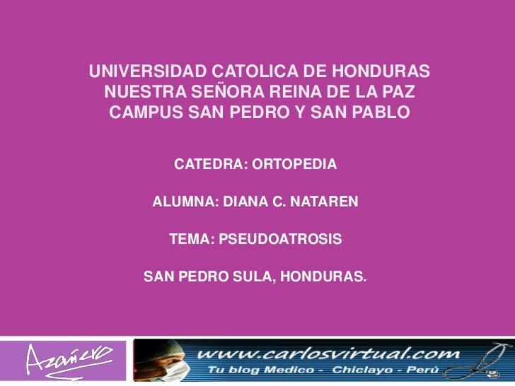UNIVERSIDAD CATOLICA DE HONDURAS NUESTRA SEÑORA REINA DE LA PAZ  CAMPUS SAN PEDRO Y SAN PABLO        CATEDRA: ORTOPEDIA   ...