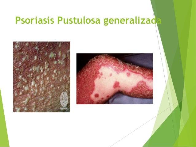 La tintura sobre las setas de la psoriasis