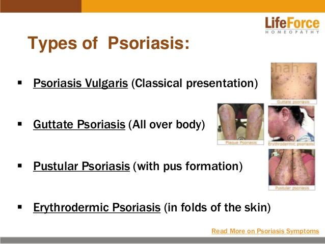 Types of Psoriasis Topics 1