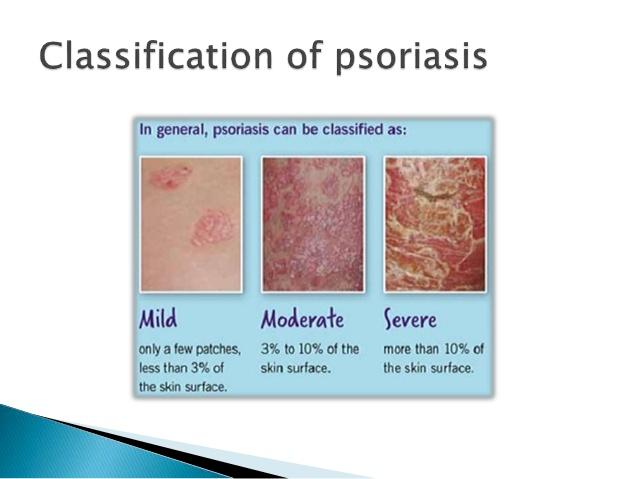 Best psoriasis 1
