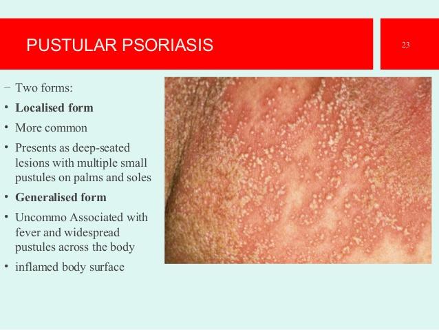 Pustular PsoriasisManagement of Moderate to Severe Chronic Plaque Psoriasis 2