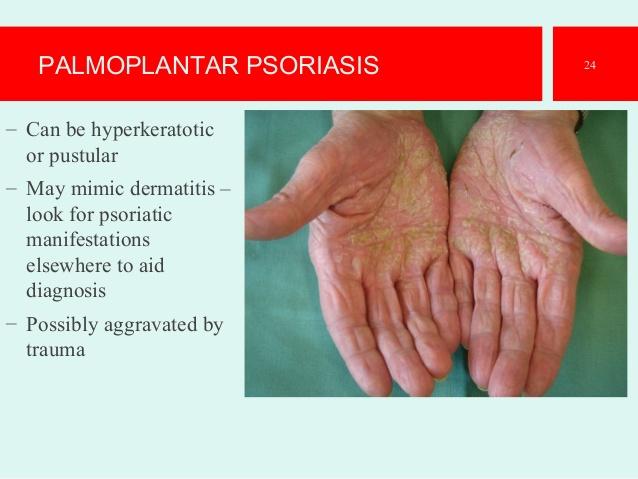 Efficacy of ustekinumab in palmoplantar psoriasis 3
