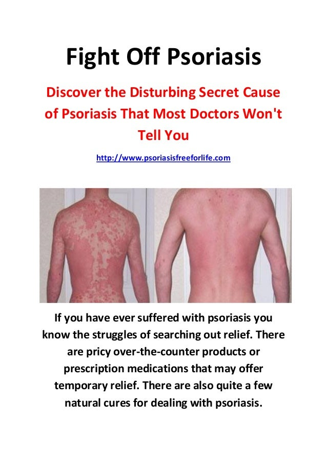 Fight Off PsoriasisDiscover the Disturbing Secret Causeof Psoriasis That Most Doctors Wont               Tell You         ...