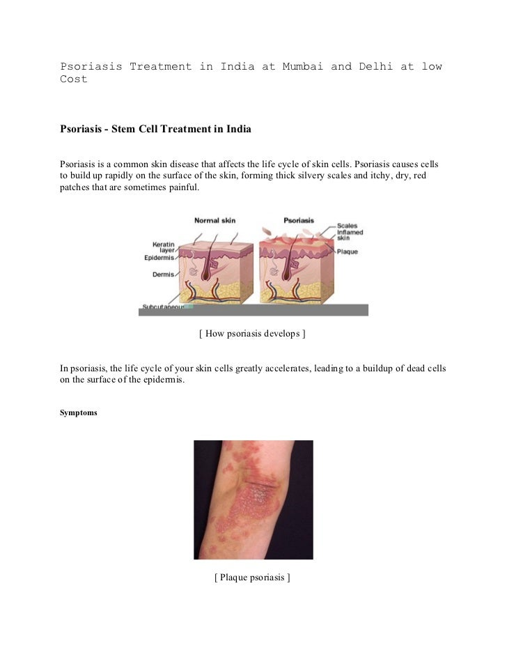 Psoriasis Treatment in India at Mumbai and Delhi at lowCostPsoriasis - Stem Cell Treatment in IndiaPsoriasis is a common s...