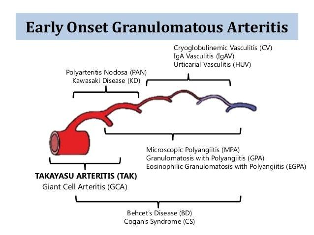 takayasu arteritis classification