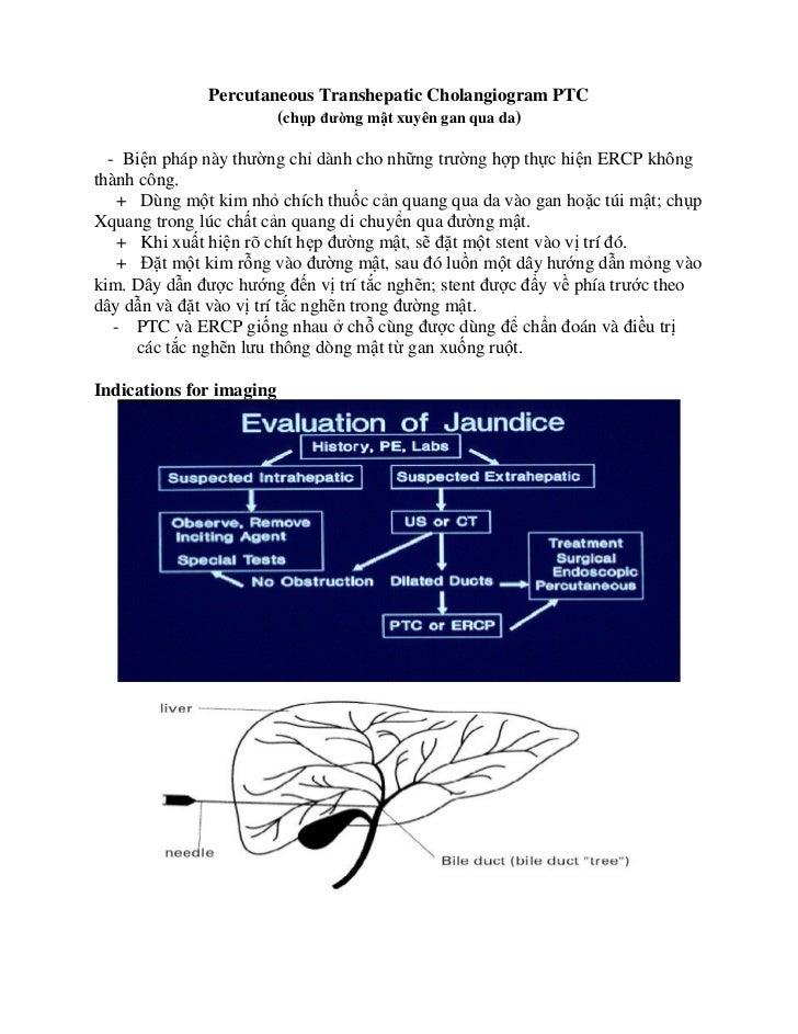 Percutaneous Transhepatic Cholangiogram PTC                      (ch p ñư ng m t xuyên gan qua da)  - Bi n pháp này thư ng...