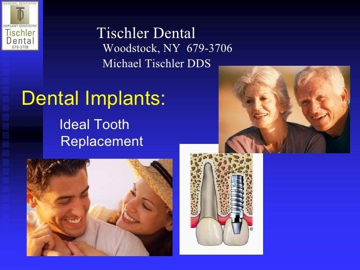 TischlerDental         Woodstock,NY6793706         MichaelTischlerDDSDentalImplants:    IdealTooth    Replace...