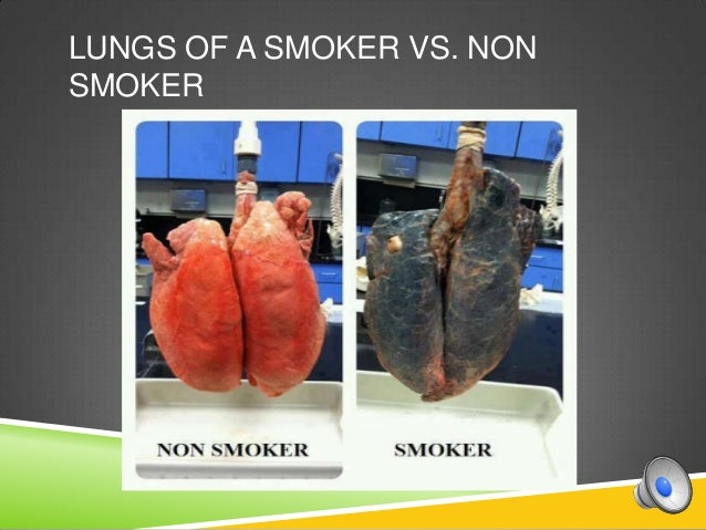 This Is What 7 Smoker vs. Non-Smoker Identical Twins Look Like ...