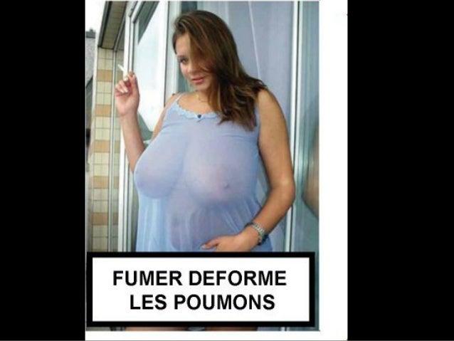 FUMER DEFORME LES POUMONS