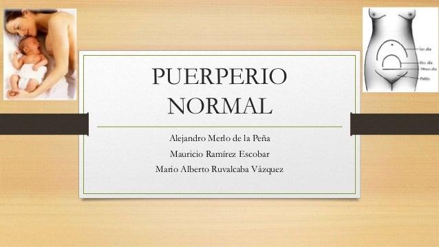PUERPERIO NORMAL Alejandro Merlo de la Peña Mauricio Ramírez Escobar Mario Alberto Ruvalcaba Vázquez