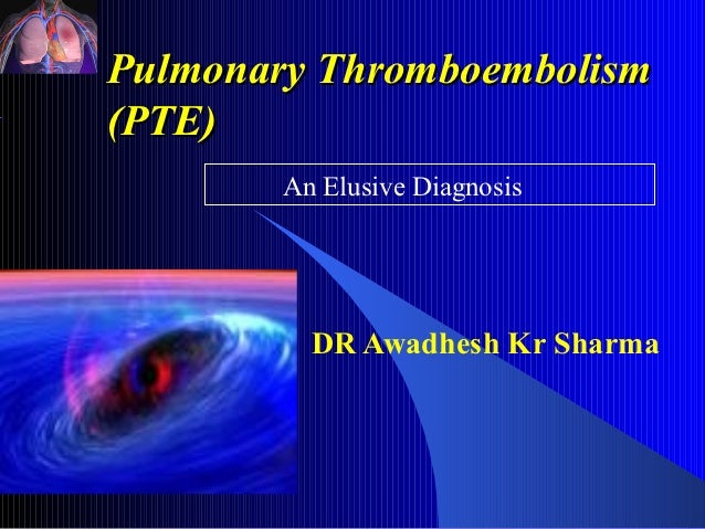 Pulmonary Thromboembolism(PTE)        An Elusive Diagnosis          DR Awadhesh Kr Sharma