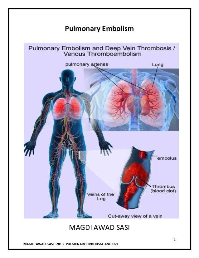 1MAGDI AWAD SASI 2013 PULMONARY EMBOLISM AND DVTPulmonary EmbolismMAGDI AWAD SASI