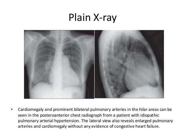 Cialis Pulmonary Hypertension