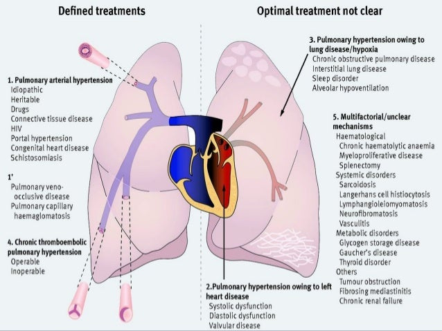 pulmonary sarcoidosis steroid treatment