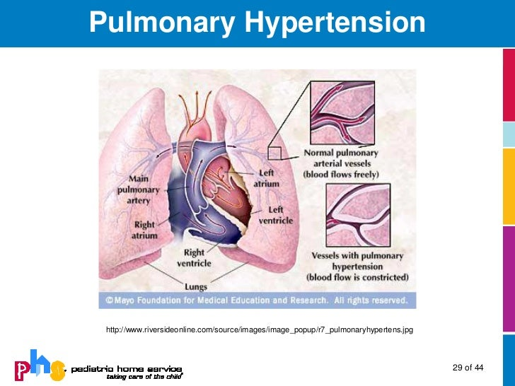 Viagra As Treatment For Pulmonary Hypertension