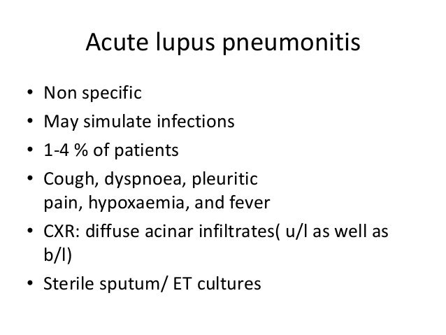 Neurontin For Lupus