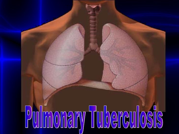 Pulmonary Tuberculosis