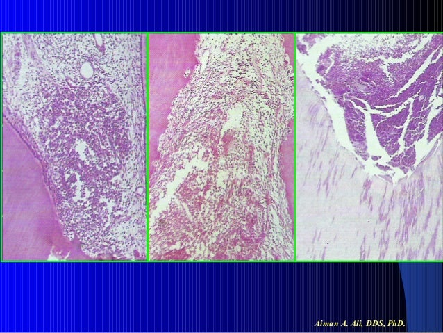 chronic hyperplastic pulpitis images