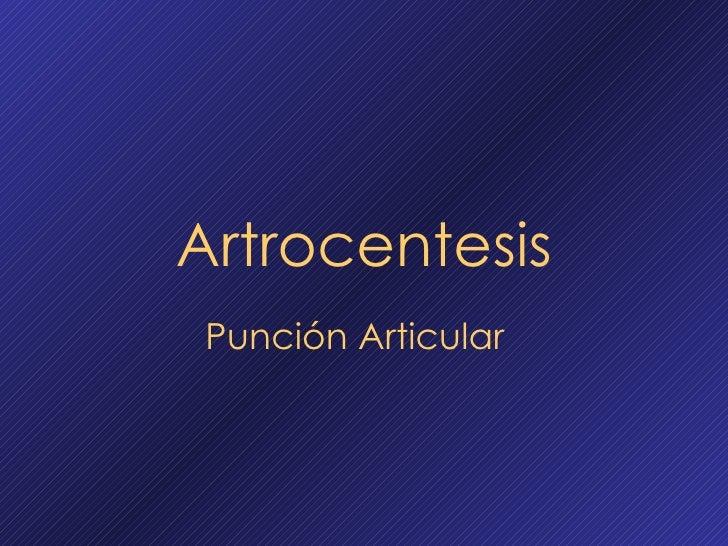 Artrocentesis Punción Articular