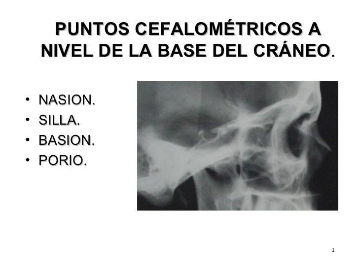 PUNTOS CEFALOMÉTRICOS A NIVEL DE LA BASE DEL CRÁNEO . <ul><li>NASION. </li></ul><ul><li>SILLA.  </li></ul><ul><li>BASION. ...
