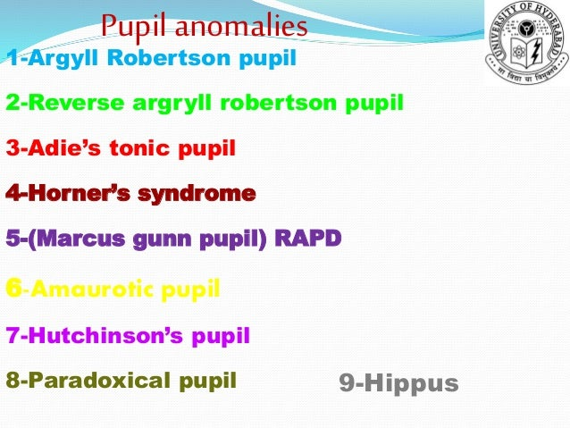 Pupil Anomalies And Disorders Shiva Ppt