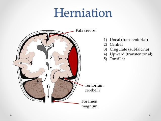 uncal herniation