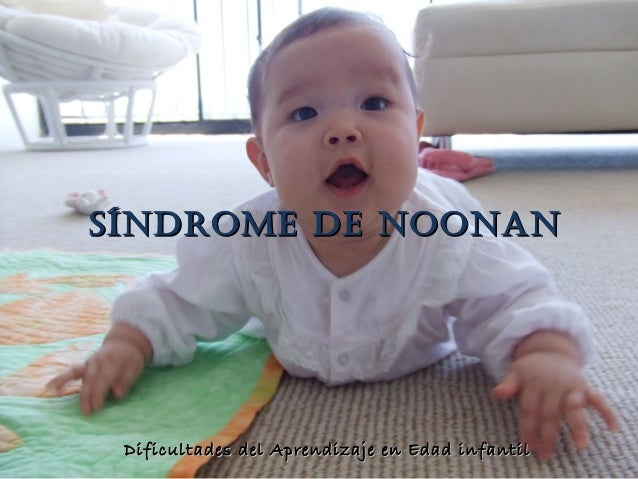 Pwer point sindrome noonan