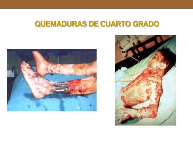 quemaduras ForQuemaduras De Cuarto Grado